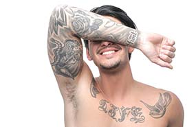 Tattoo Removal Gold Coast